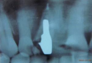 破折した歯のレントゲン