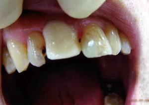 白い仮歯を入れます