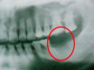 歯の抜けた痕
