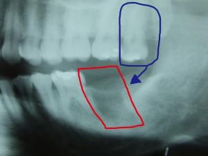 生きた歯抜歯−1